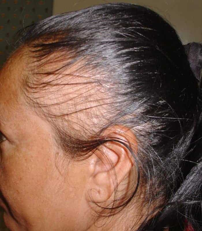 scarring alopecia treatment