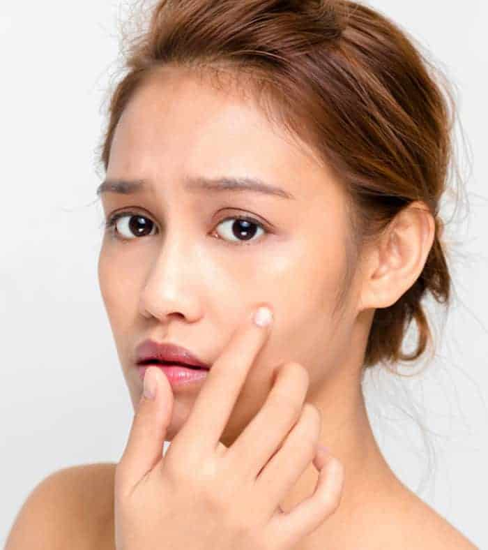 How To Clear Acne Marks Naturally Fast
