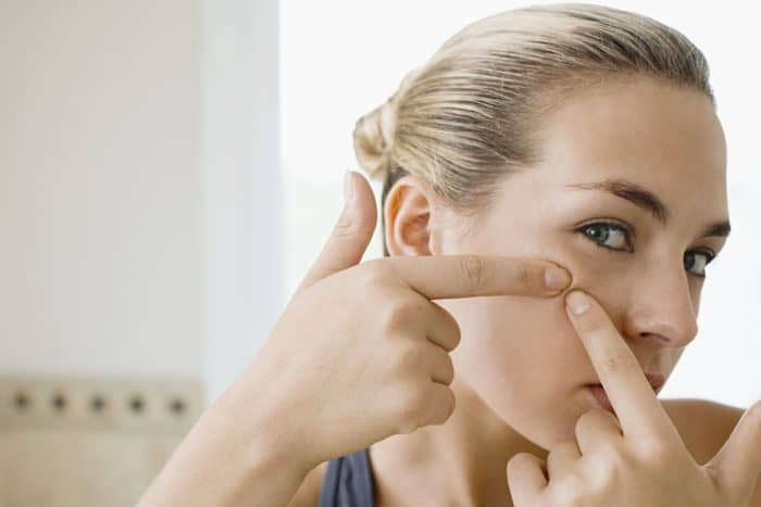 Natural Acne Care Tips